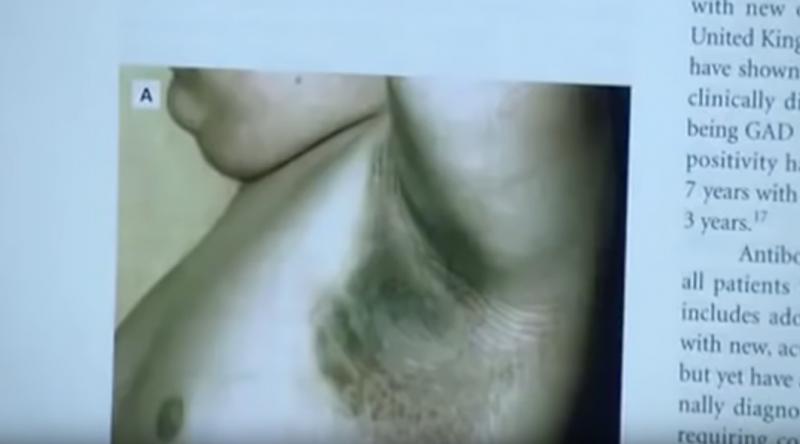 diabetes negra en el cuello